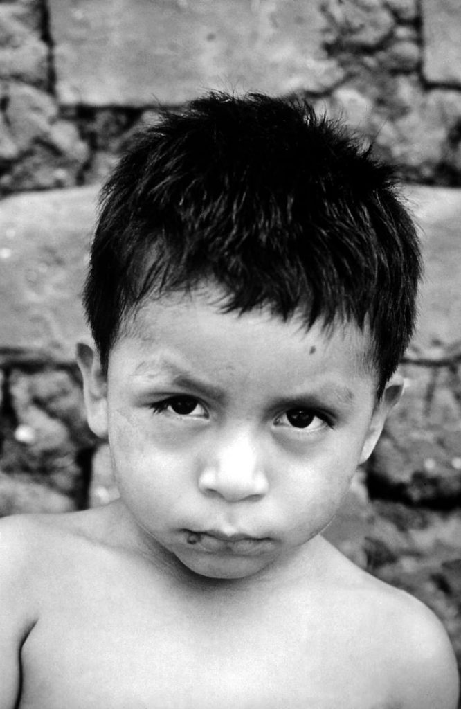 Boy with Chagas (Taken in Panama 1962 by CDC Dr. Mae Melvin)
